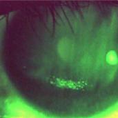 点状表層角膜炎